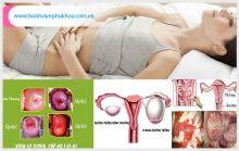 Triệu chứng sùi mào gà ở nữ và cách chữa trị an toàn